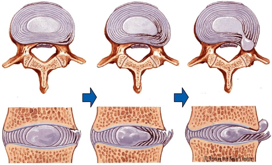 gerinc sérv a térdízületekben