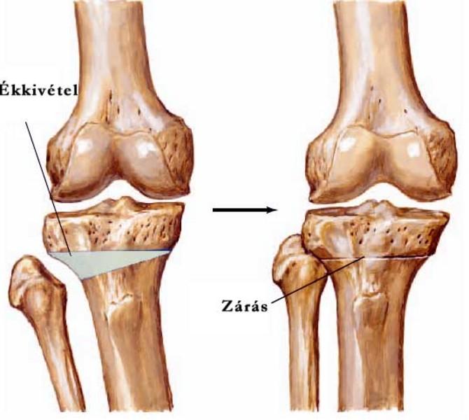 hogyan javíthatjuk a porc regenerációját a kéz deformáló artrózisának kezelése