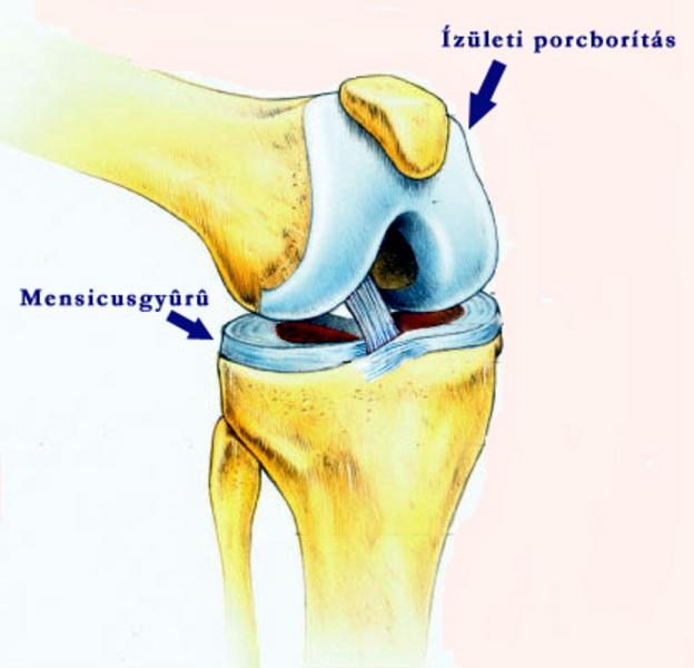 az artrózis kezdeti stádiuma hogyan kell kezelni karboxiterápiás ízületi kezelés
